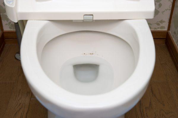 トイレの黒ずみの正体